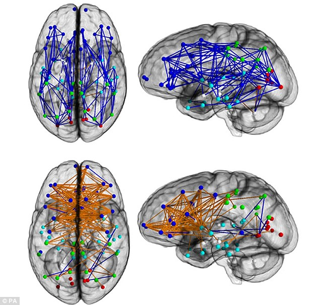 scan du cerveau des hommes et des femmes